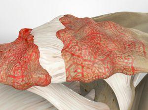 Acromioclavicular (AC) Joint Arthritis
