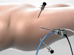 Femoroacetabular Impingement Surgery