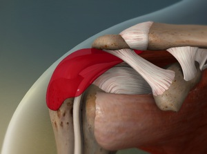 Bursitis of the Shoulder (Subacromial Bursitis)