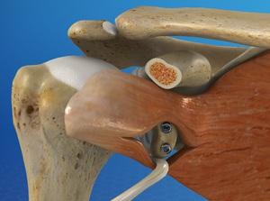 Latarjet Procedure for Shoulder Instability