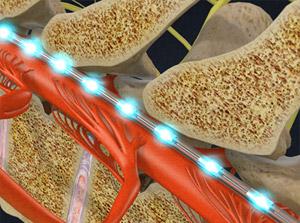 Spinal Cord Stimulator Implant