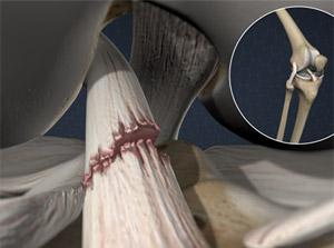 Anterior Cruciate Ligament Tear (ACL Tear)