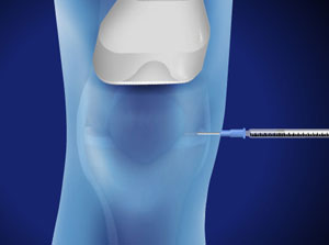 Ultrasound-Guided Injection for Knee Pain