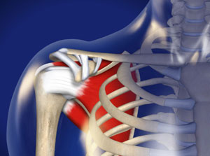 Ultrasound-Guided Injection for Shoulder Pain