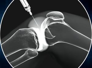 Viscosupplementation for Arthritis of the Knee